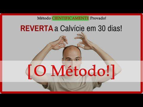Tratamento para Calvice - O Método para tratamento para calvice - YouTube