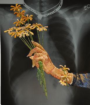 super-cool... embroidered X-rays by Mathew Cox