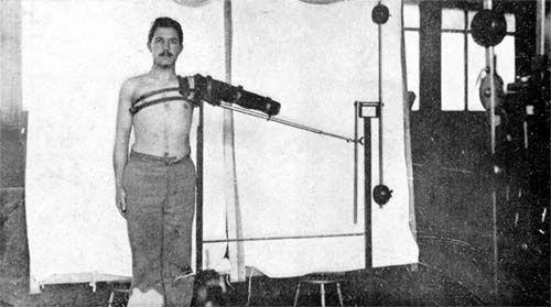 Amputé du bras à l'appareil de mécanothérapie. L'hôpital Anglo-Belge à Rouen. Médecins de la Grande Guerre -