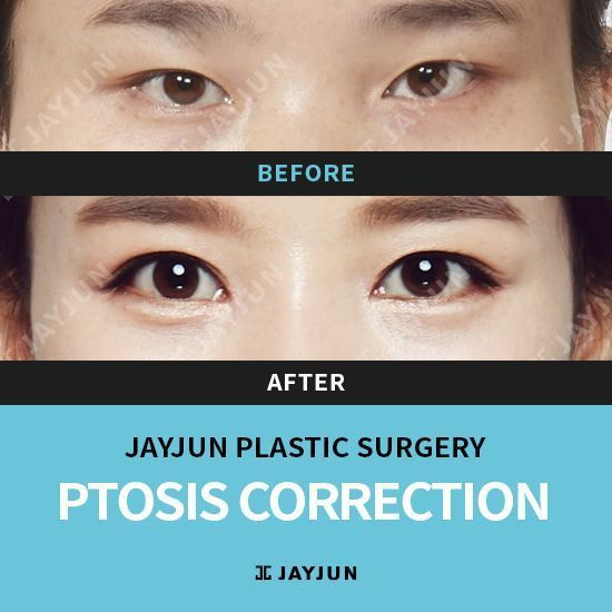 Korea Eyelid Surgery Korea Caucasian Double Eyelid Surgery Eyelids Surgery In Korea Double Eyelid Surgery In Korea Korea Eye Bag Removal Korea Double Eyelids Ko Double Eyelid Eyelid Surgery Korean Eye