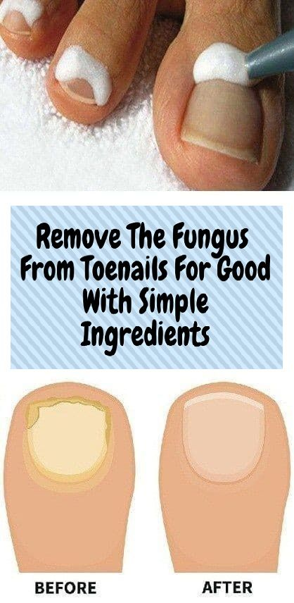 Remove The Fungus From Toenails For Good With Simple Ingredients