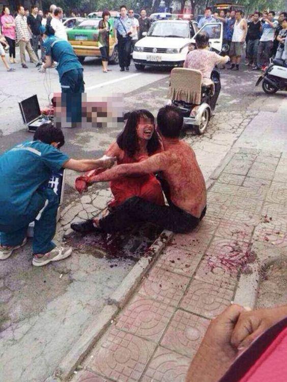 Fuerte Imagen De Hombre Que Apuñaló A Otro Por Creerlo Amante De Su Mujer