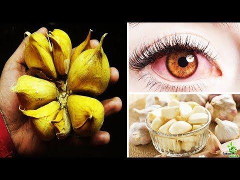 Un Solo Diente De Ajo Y Dile Adios A Los Lentes Cura Ceguera