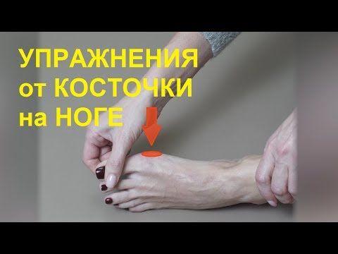 нами артрит шишка на ноге самое запретное