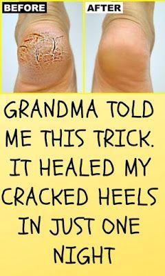 Pin On Feet Cracked Diy Masks