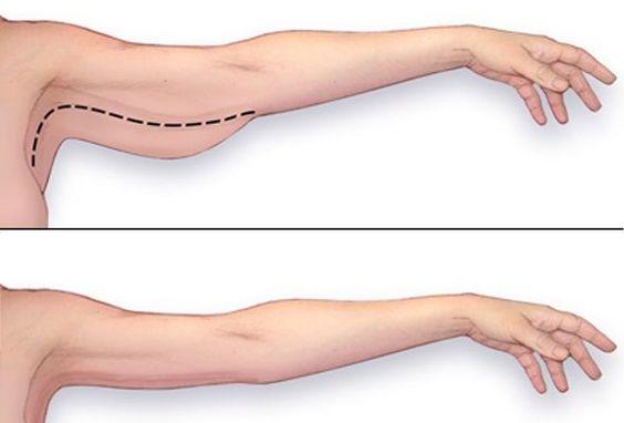 Découvrez le programme ciblé pour affiner et sculpter ses bras en 20 minutes chez soi.