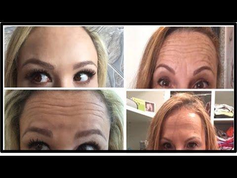 Botox Caseiro Para O Rosto,Como Acabar Com RUGAS Do ROSTO Com Um Serum Poderoso.(Anti Rugas) - YouTube