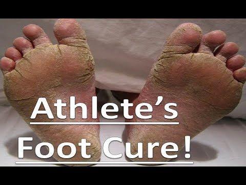 8 Easy Ways To Heal Athlete S Foot In 2020 Foot Remedies Athletes Foot Remedies Athletes Foot