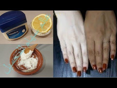 طريقتي لتبيض اليدين بالليمون والفازلين من اول استعمال ستجعل يديك كأيدي الأطفال جربي و تأكدي بنفسك Youtube Ice Cream Desserts Food