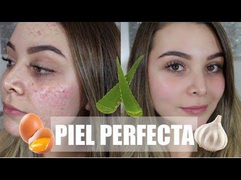 Remedios Naturales Para Una Piel Perfecta Sin Acne Maqui015 Youtube Piel Perfecta Acne Remedios Caseros Remedios Para El Acne
