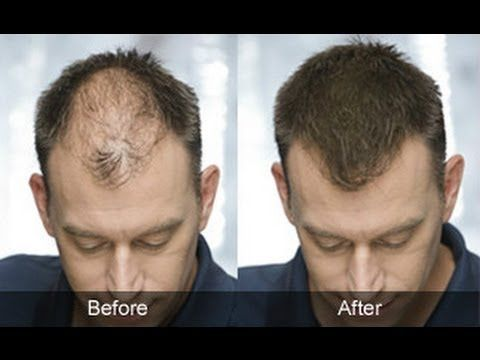 Hair Regrowth For Men Naturally Male Pattern Baldness Home
