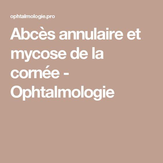 Abcès annulaire et mycose de la cornée - Ophtalmologie