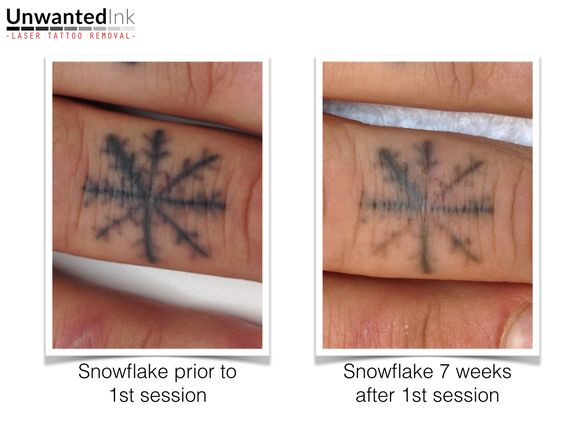 One session in and this snowflake is melting right away! Want to see more laser tattoo removal results? Head to www.unwantedinktattooremoval.com