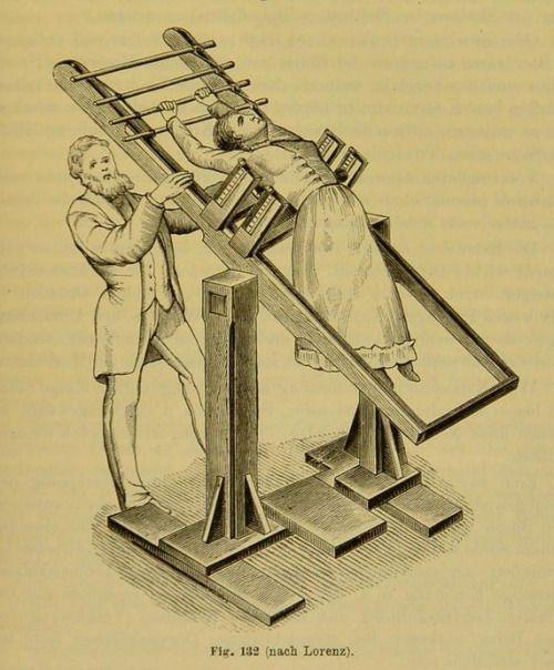 nemfrog:  Fig. 132. Scoliosis treatment.Mechanotherapie: ein Handbuch der Orthopaedie, Gymnastik und Massage. 1894.