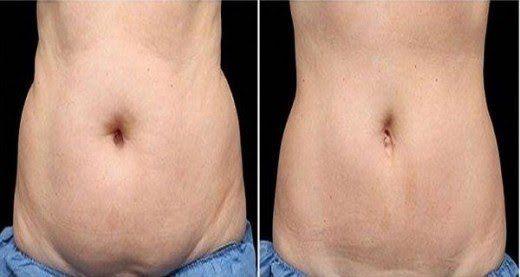"""Résultat de recherche d'images pour """"Voici une astuce simple pour se débarrasser de la graisse abdominale à la maison"""""""