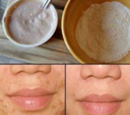 La pigmentation de la peau blanchissant de la crème