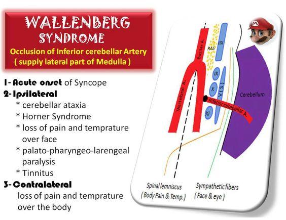 Populaire Les 25 meilleures idées de la catégorie Syndrome de wallenberg sur  WF99
