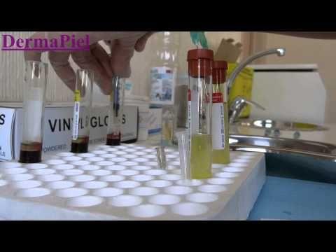 Plasma Rico en Plaquetas PRP - Dermapiel