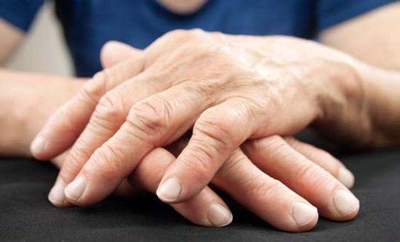 Remedios naturales para eliminar dolores provocados por la artritis