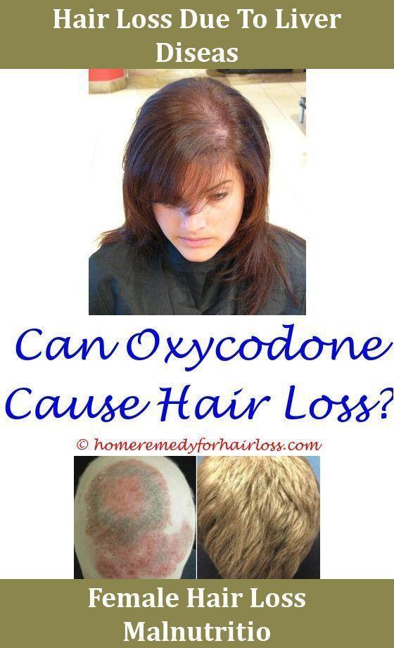 Hair Loss How Many Milligrams Of Biotin For Hair Loss Residue On Scalp And Hair Loss Jojoba Oil For Pcos Hair Loss Women Dermatologist Hair Loss Cat Hair Loss