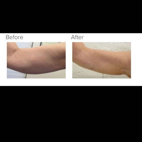 Pin On Amazing Liposuction Revision Results With Bodytite
