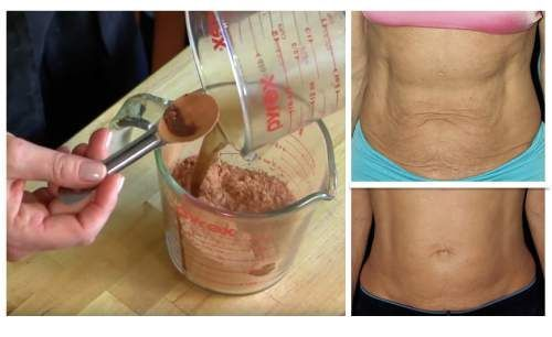 Firm Saggy Stomach Skin Naturally WithoutExpensive Spa Treatments Nothing is more annoying than a saggy tummy. But why spend lots of money