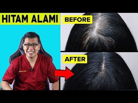 Cara Mengatasi Ubanan Rambut Putih Secara Alami Dr Saddam Ismail Youtube Rambut Putih Kesehatan Pria Obat Alami
