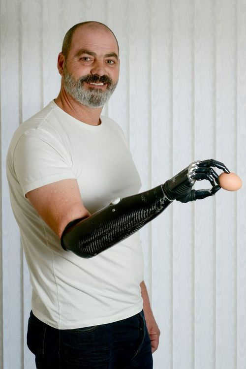 """""""I feel like the Terminator"""": One-armed man's life transformed by advanced robot hand  A one-armed man's life has been transformed by a robot hand so accurate it can grip an egg without cracking it.  Nigel Ackland's advanced bionic limb has given him back the ability to do everyday tasks such as peeling vegetables, tying laces and typing.  The 53-year-old lost his right arm below the elbow after it was crushed in an industrial accident six years ago.  He struggled with NHS prosth"""