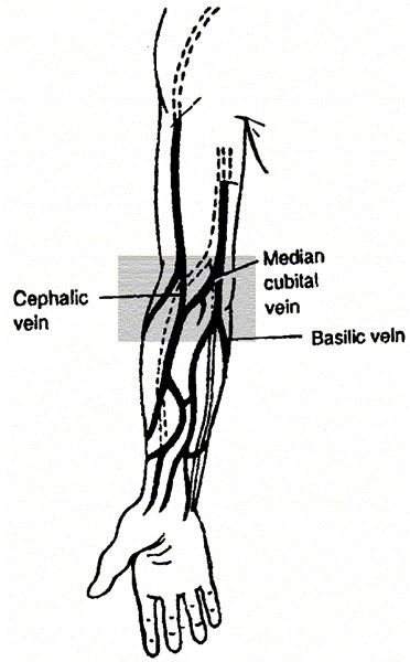 how to find a vein to inject