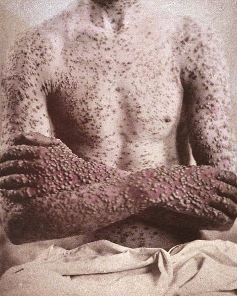 Before being eradicated, smallpox terrorized the world for thousands of years. GEORGE HENRY FOX, PHOTOGRAPHIC ILLUSTRATIONS OF SKIN DISEASES/ PUBLIC DOMAIN