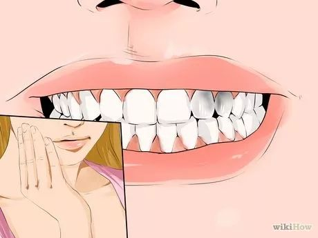 Imagen titulada Heal Dental Cavities Naturally Step 7