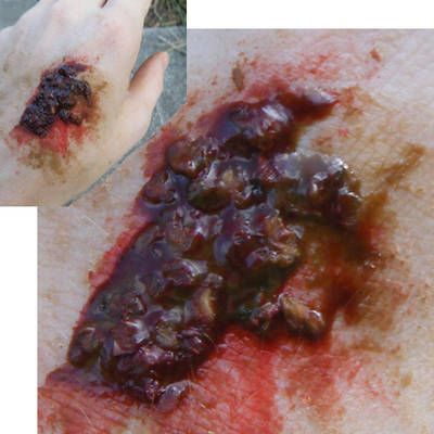 zombie scabs -        Mix together:      1/2 TBS corn starch      1 tsp water      1/4 tsp corn syrup      3/4 tsp onion flakes (1 tsp corn flakes or bran flakes will work, too)      1 drop red food coloring      1 drop yellow food coloring: