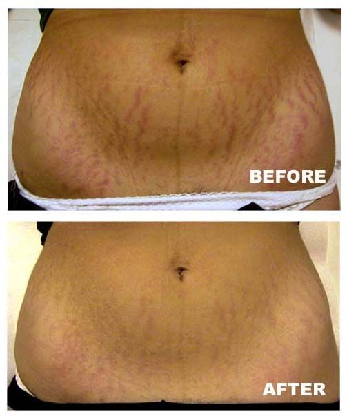 Stretch Marks Tips Page 96 Biooilresults With Images Stretch