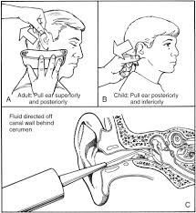 ear irrigation - google search | nursing | pinterest | sök, Skeleton