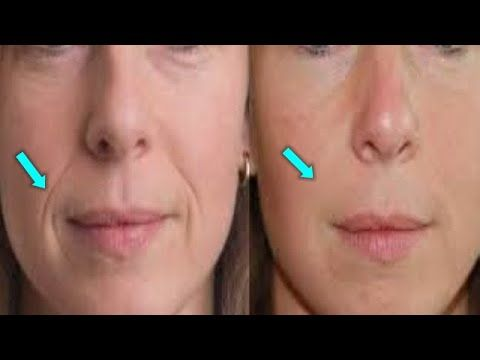 fabba85b898ba0f0eea66377b73180b0 - How To Get Rid Of A Crease On Your Nose