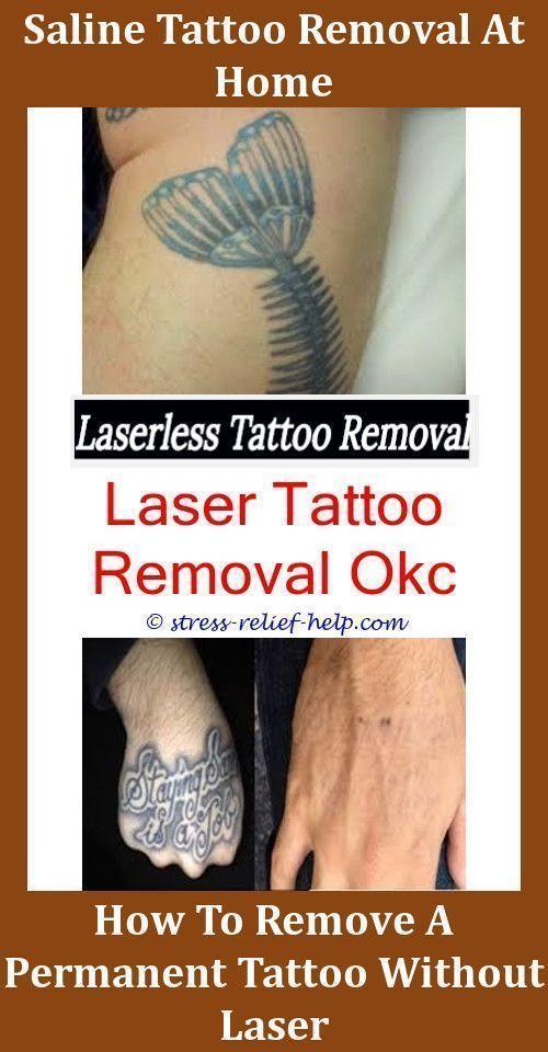 Laser Tattoo Removal Cost Okc - Tattoo Ideas