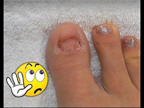 No Toenails Make Some Acrylic Glitter Toesnails Using Dual Forms Youtube Acrylic Toe Nails Acrylic Toes Toe Nails