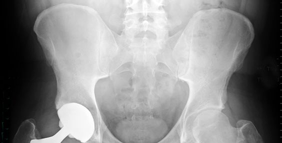 9 Things No One Ever Tells You About Getting A Hip Replacement