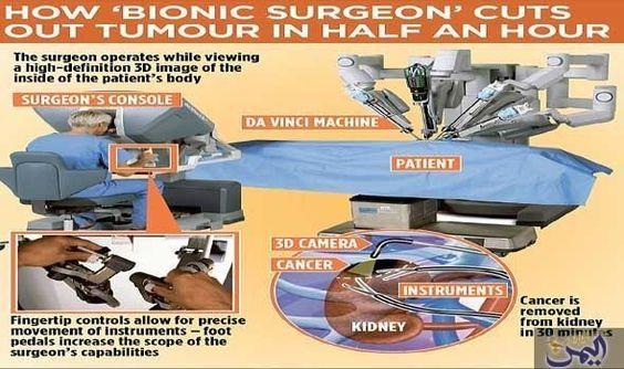"""أطباء يبيّنون أن """"آلة دافنشي"""" تستخدم لعلاج…: عشرة آلاف من البريطانيين مرضى بسرطان الكلى كل عام يتعين عليهم إزالة الورم بواسطة الروبوت، وذلك…"""