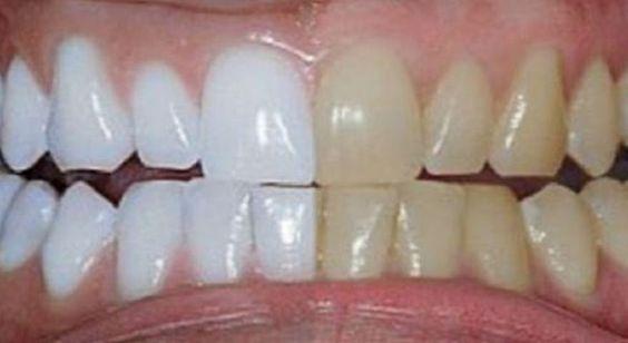 Stačí zmiešať 2 suroviny a natrieť nimi zuby. Viete čo sa stane?