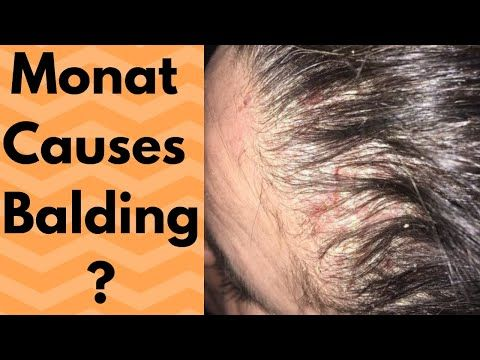 The Monat Lawsuit The Woman Who Lost Her Hair R Antimlm Youtube In 2020 Hair Falling Out Monat Her Hair