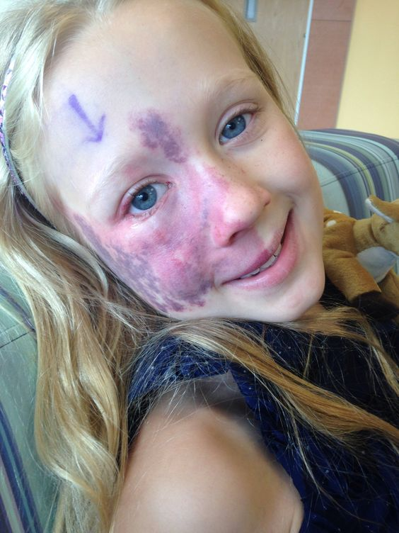 I have some catching up to do here! In August, Addy went in for her 38th laser surgery at Children's Hospital to zap off her Port Wine Stain. It was more complicated than usual: we added a minor e...