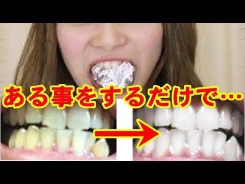 歯 を 白く する 方法 見た目が3歳若返る!?誰でも出来る歯を白くする方法12選