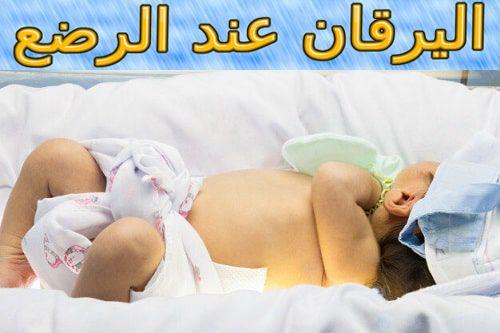 اليرقان عند الرضع أسبابه أعراضه وعلاجه Baby Face Baby Face