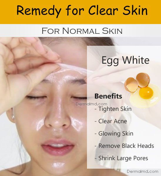 Pin On How To Make Skin Lighter