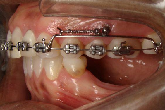 mini-implantes, mini-implantes ortodônticos, ancoragem, artigo