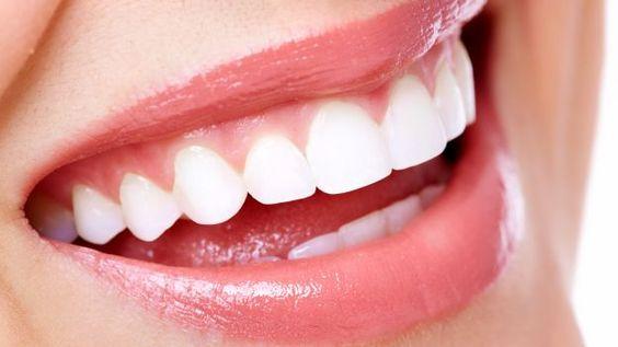 Sbiancante per i denti Per ottenere dei denti più bianchi si consiglia di sfregare un pezzetto di buccia di banana su di essi per circa due minuti ogni volta in cui si decida a lavarsi i denti, in modo tale da poter ottenere un sorriso perfetto.