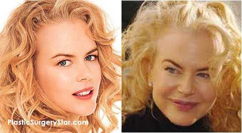 Nicole Kidman has had several Botox injections. She's had injections on her cheek bones, jaw line, fore head, eyebrows, and eyes / crows feet.: