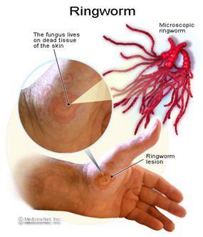 Natural Way To Rid Parasites From Humans