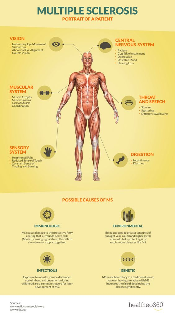 Multiple Sclerosis #Infographic #infografía
